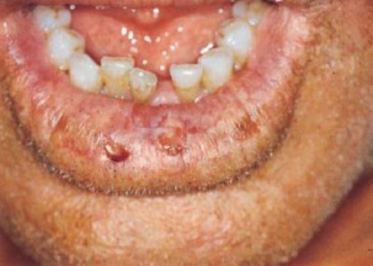 Actinic-cheilitis--738x526