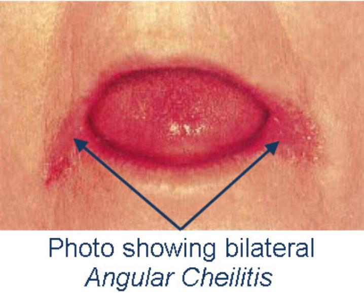 Angular_Cheilitis-718x578