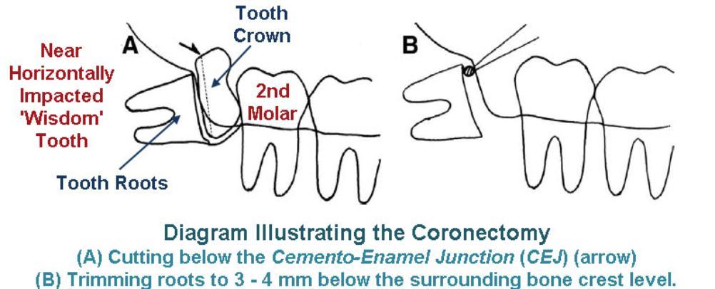 Coronectomy_-_Illustration_of_Technique-1002x406