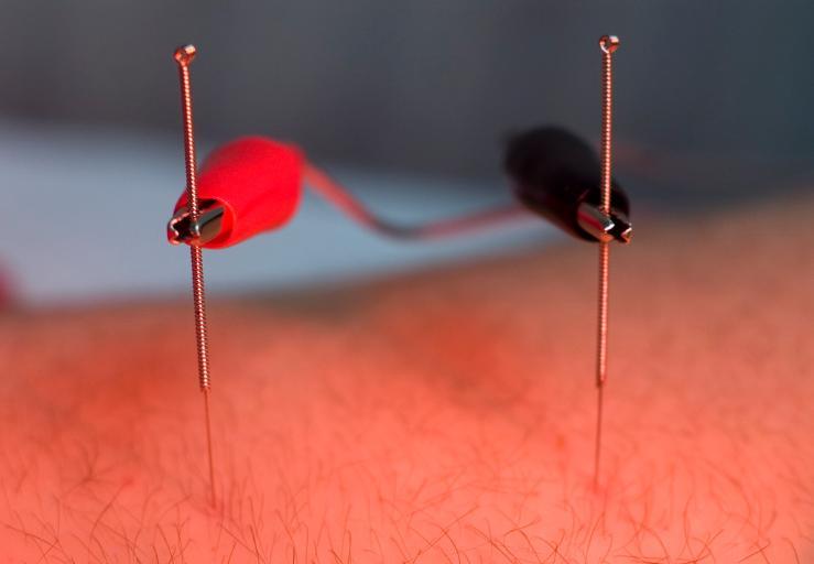 Electro-Acupuncture-739x512