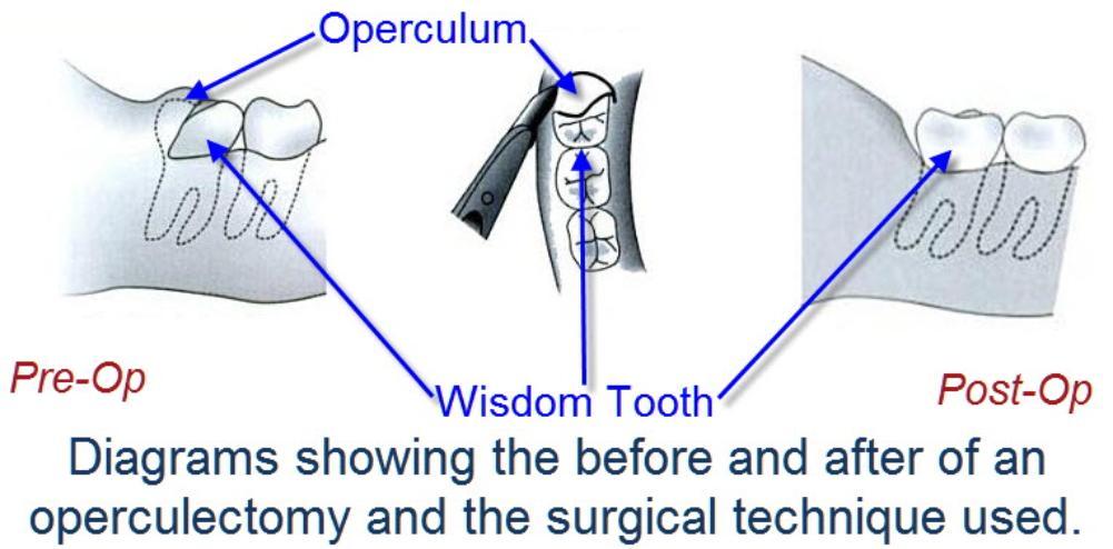 Operculectomy_Technique_-_Cold_Steel-1001x494