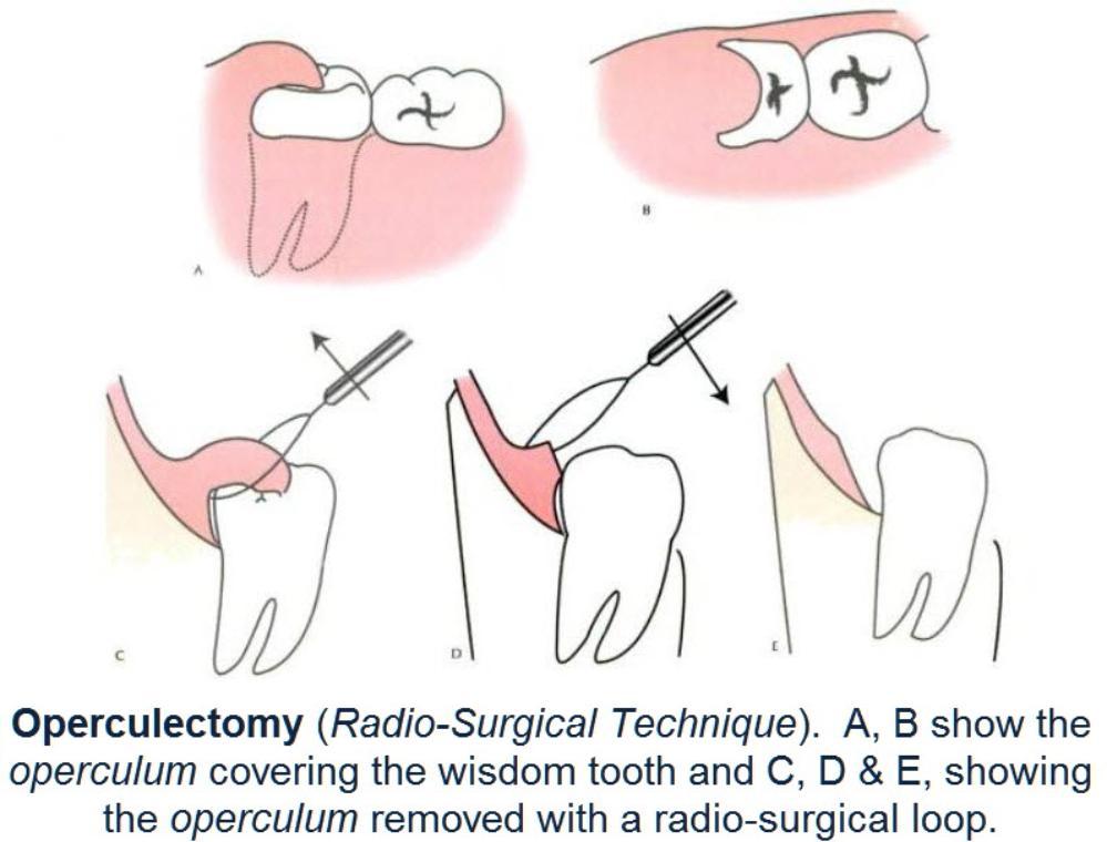 Operculectomy_Technique_-_Radio-Surgical_Technique-999x760