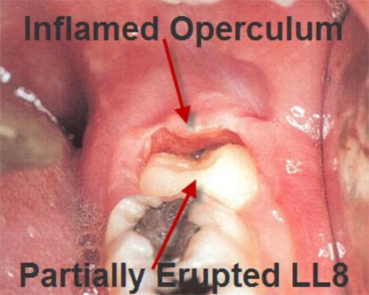 Photo of Pericoronits / Operculitis effecting Lower Jaw Wisdom Teeth
