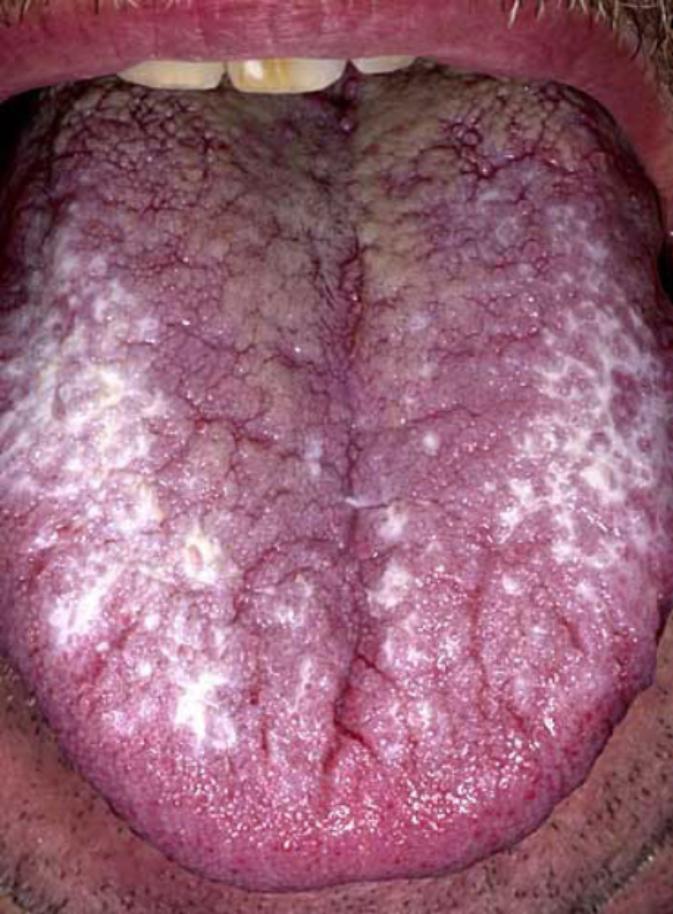Oral_lichen_planus_effecting_the_tongue-458x630-673x914