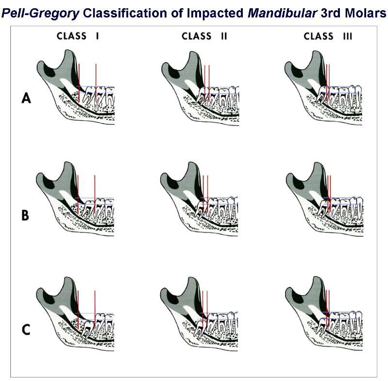 Pell-Gregory_Classification_of_Mandibular_3rd_Molars-799x785