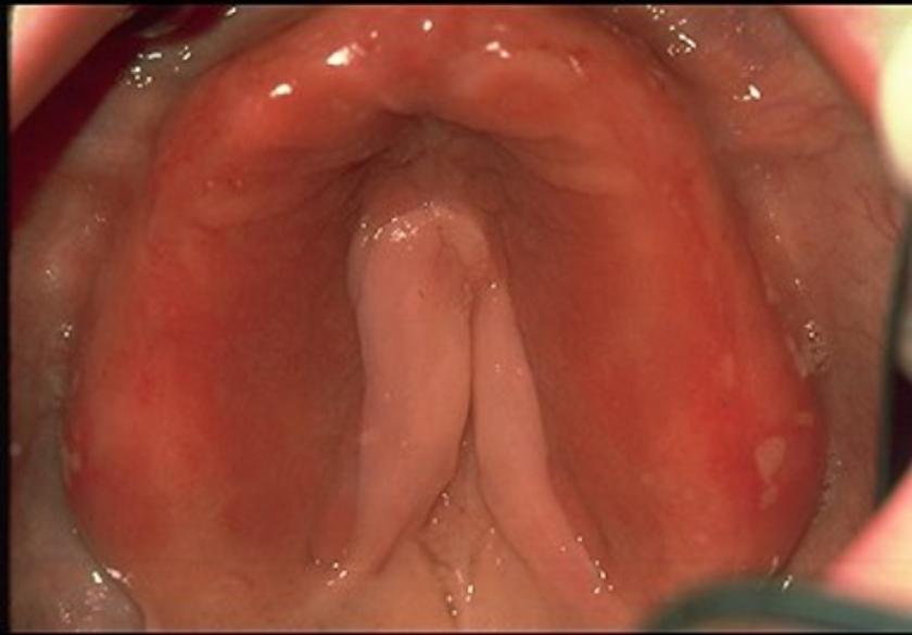 denture_stomatitis_1-536x363-840x585
