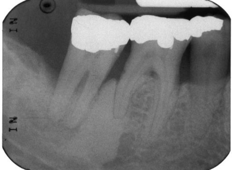focal-idiopathic-osteosclerosis-1a-814x598
