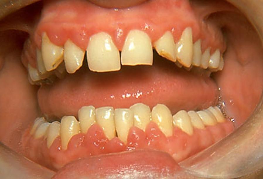 phenytoin_hyperplasia-898x610