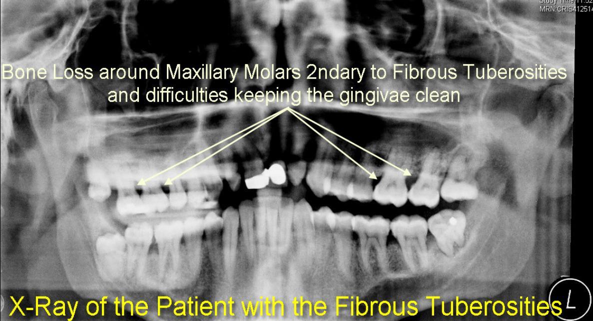 Fibrous_Tuberosities_Patient-1187x642