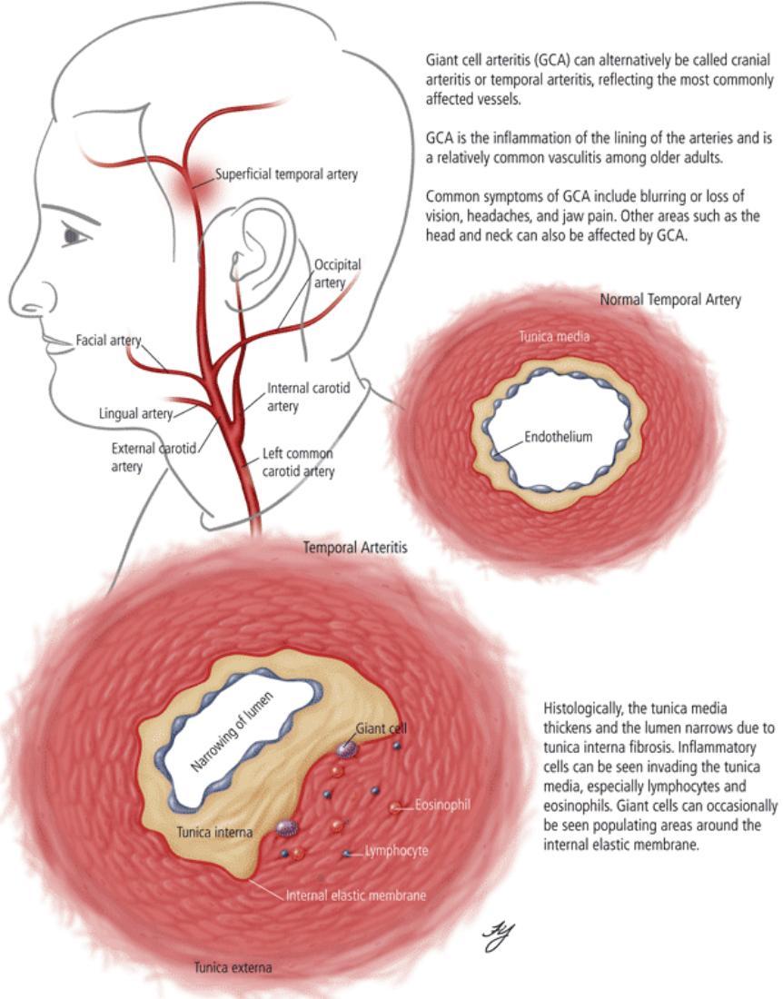 Giant_Cell_Arteritis-862x1100