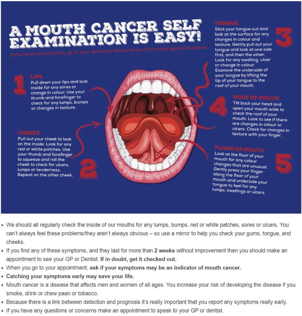 Mouth_Cancer_Self_Examination-1020x1067