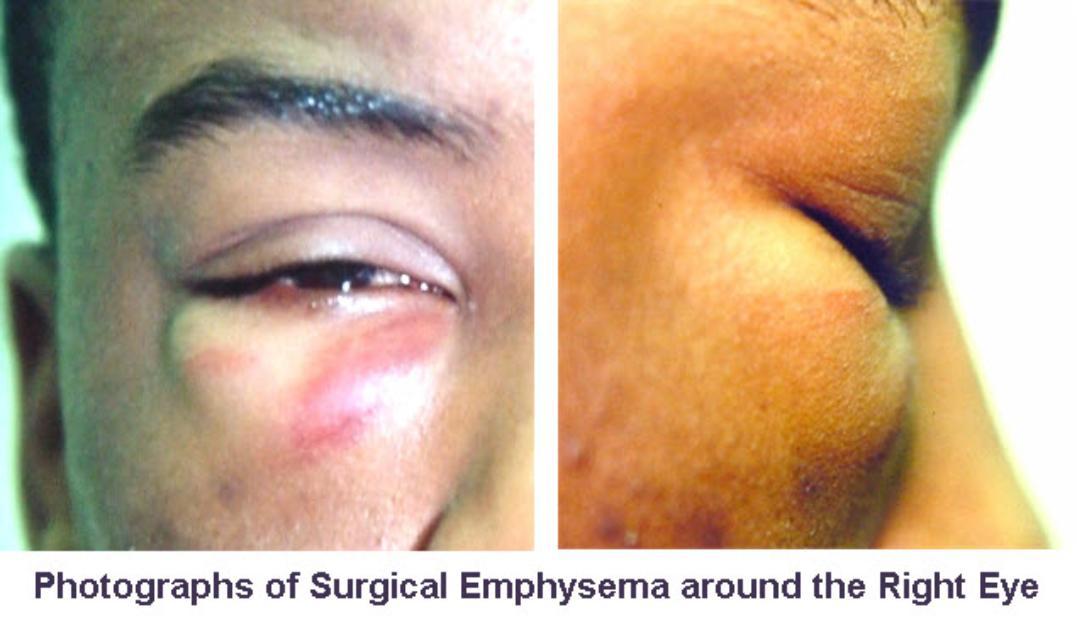 Surgical_Emphysema_air_in_orbit_head_on-1077x621