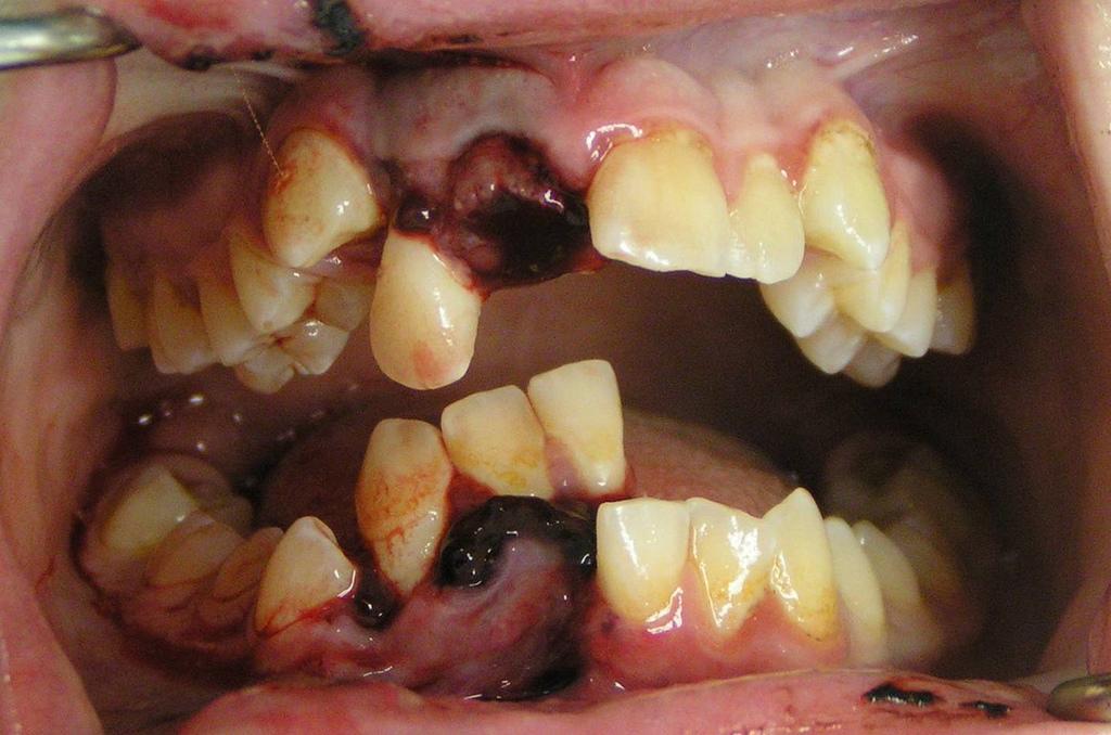Dental_Trauma
