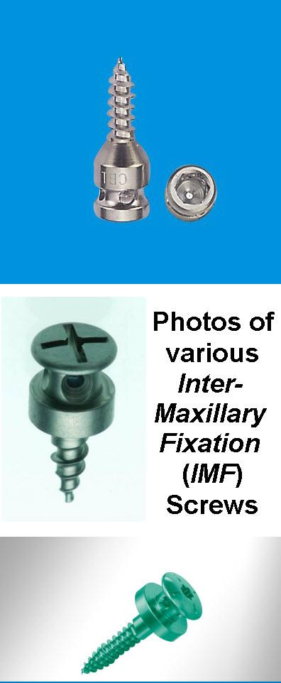 Inter_Maxillary_Fixation_Screw